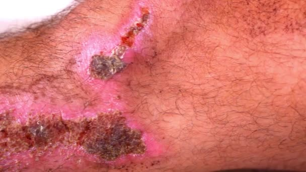 Close up of scars and wounds on hairy male leg. Macro video shift motion