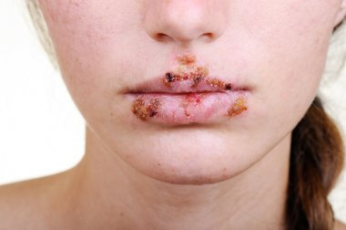 Close up of lips affected by herpes