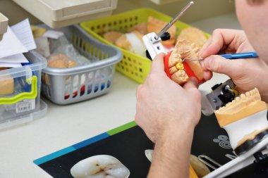 dental technician working on false teeth