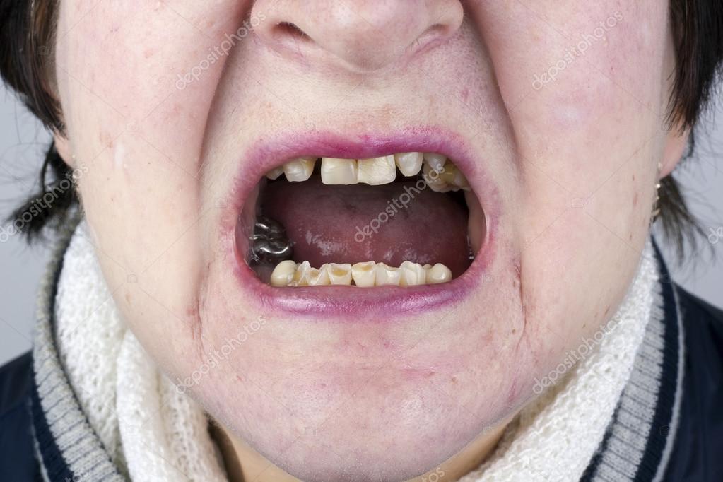 Destroyed womans  teeth