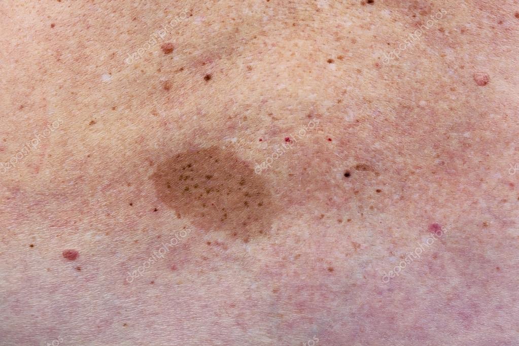 lunar grande en espalda de mujer — Foto de stock © vilaxlt #76002225