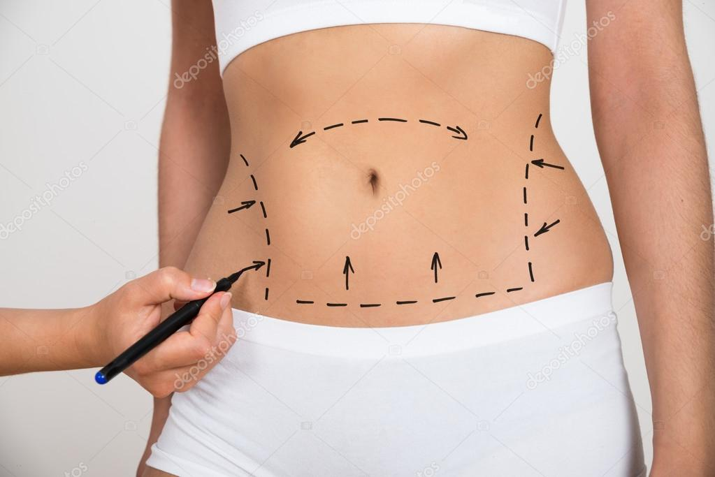 Hand Drawing Lines On Abdomen