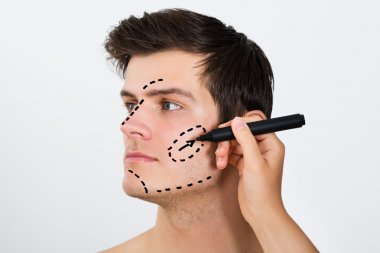 Person Hands Drawing Correction Lines On Face