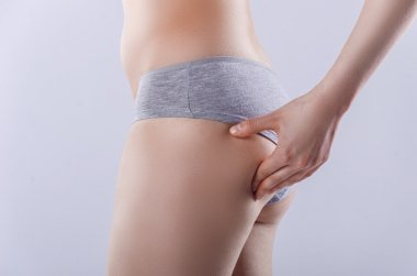 Slim woman looking at her figure cellulite and stretch marks