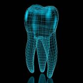 Tooth mesh