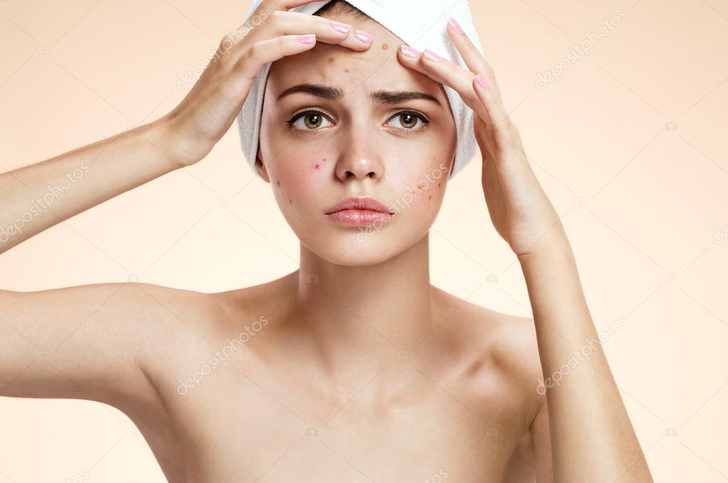 Young lady squeezing her pimples, removing pimple from her face. Woman skin care concept