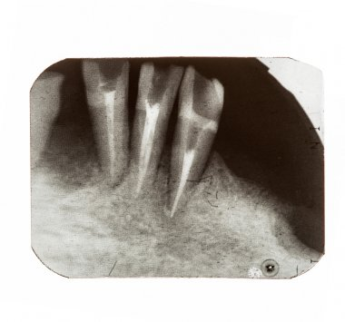 X-rays of patients teeth