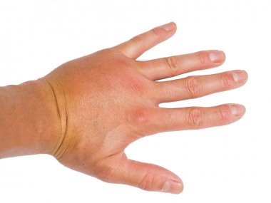 Male person showing swollen knuckles on left hand isolated on wh