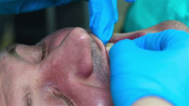 Dentist hecks Bite
