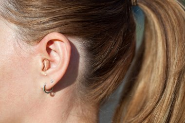 Hearing aid in the ear close up. Modern-ear hearing instruments