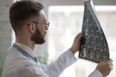 Doctor looking at brain x-ray