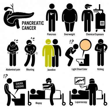 Pancreatic Pancreas Cancer Symptoms Causes Risk Factors Diagnosis Stick Figure Pictogram Icons