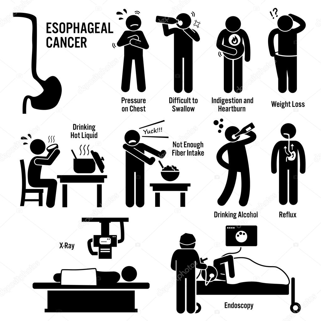 esophageal esophagus throat cancer symptoms causes risk