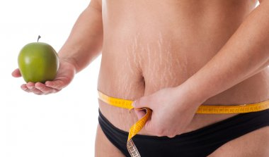 stretch marks and cellulite,concept of healthy life