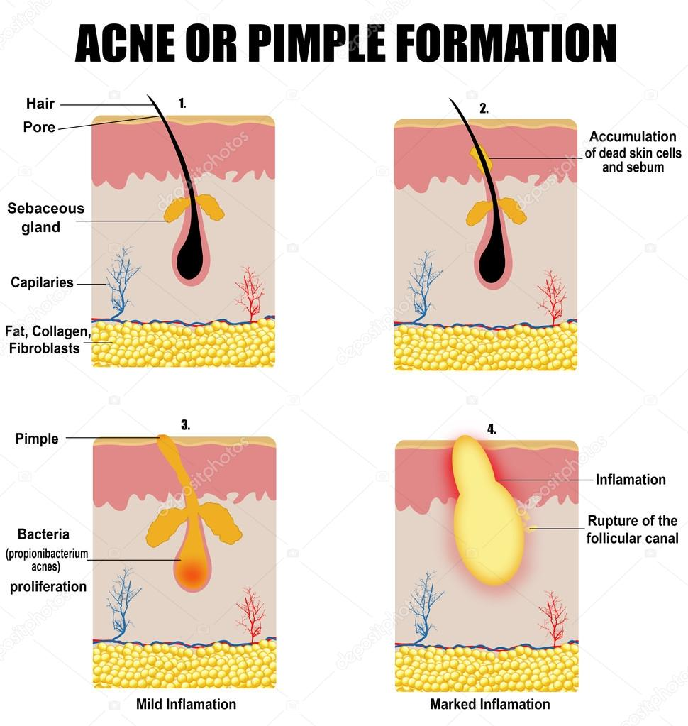 zit diagram formation of skin acne or pimple — stock vector ...  #12