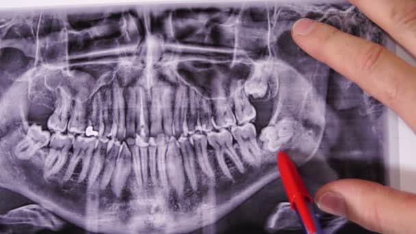 Dentist Impacted Wisdom Teeth Xray Closeup
