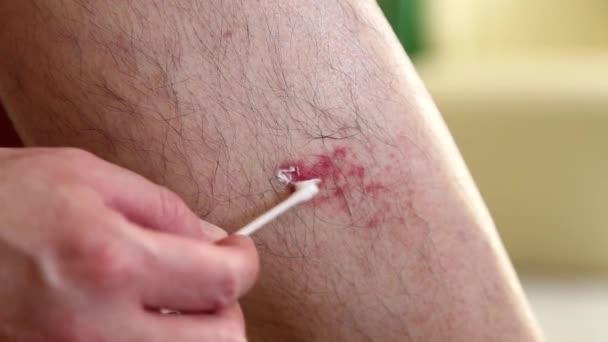 Zranění na noze člověka