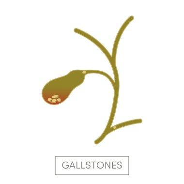 Cholelithiasis - gallstone disease