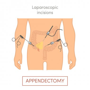 surgical removal of the appendix