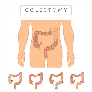illustration types of colectomy