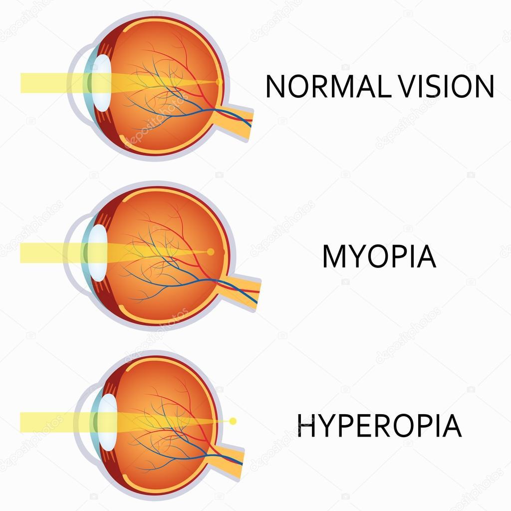 myopia és hyperopia)