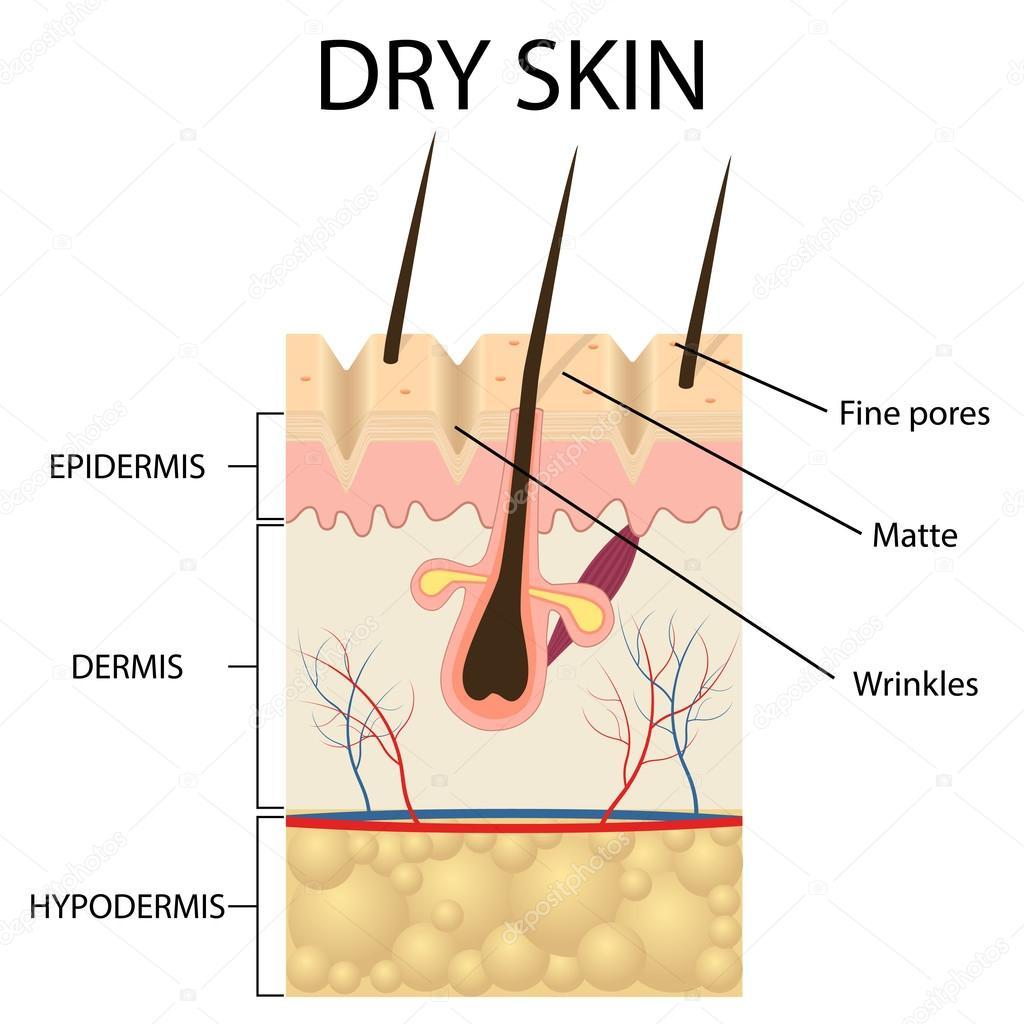 Ilustración de las capas de la piel seca — Vector de stock ...