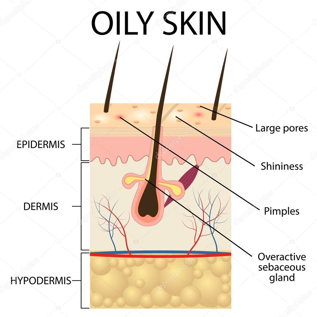 Illustration of the layers of oily skin stock vector illustration of the layers of oily skin stock vector pooptronica Image collections