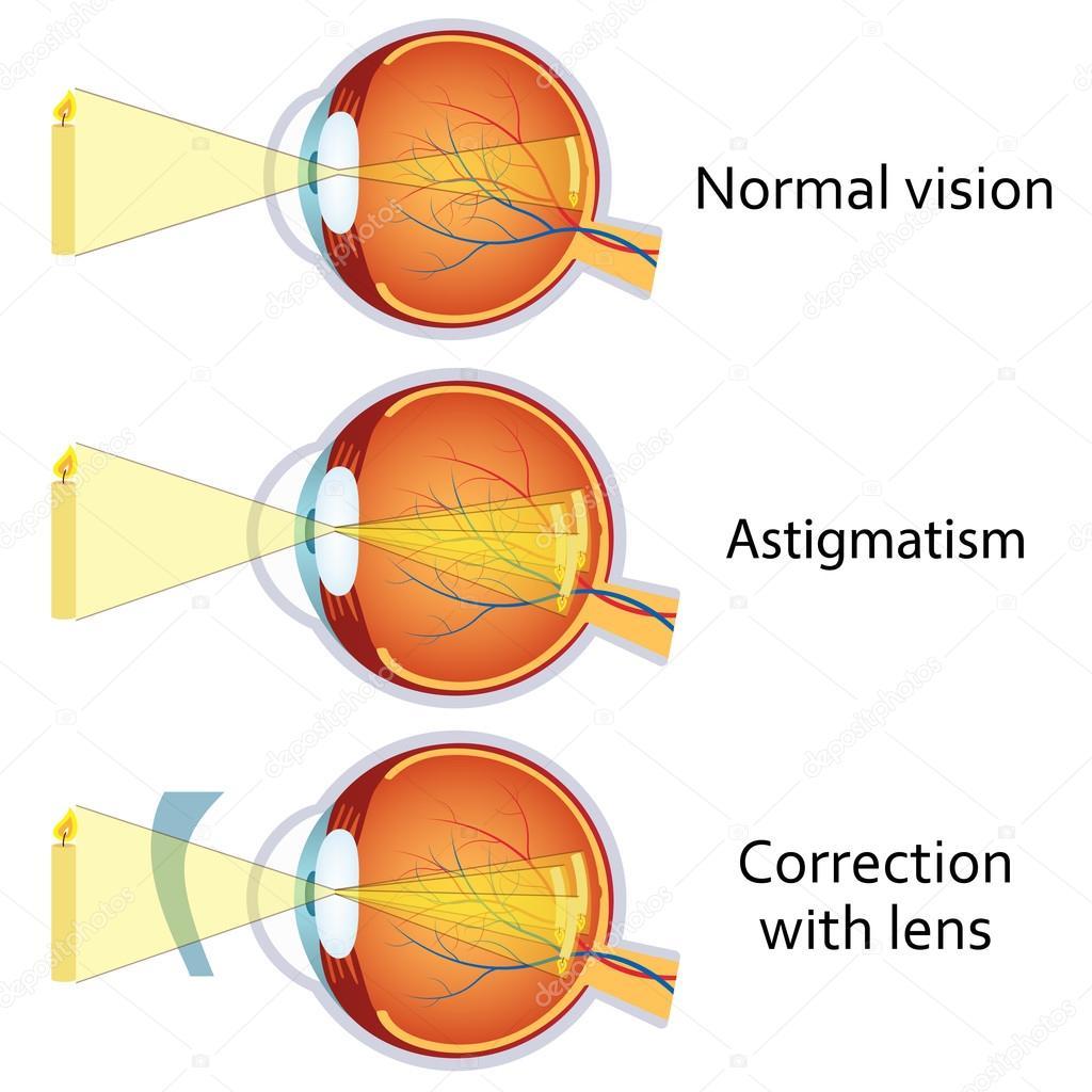 Astigmatismo, corregido por una lente cilíndrica — Vector de stock ...