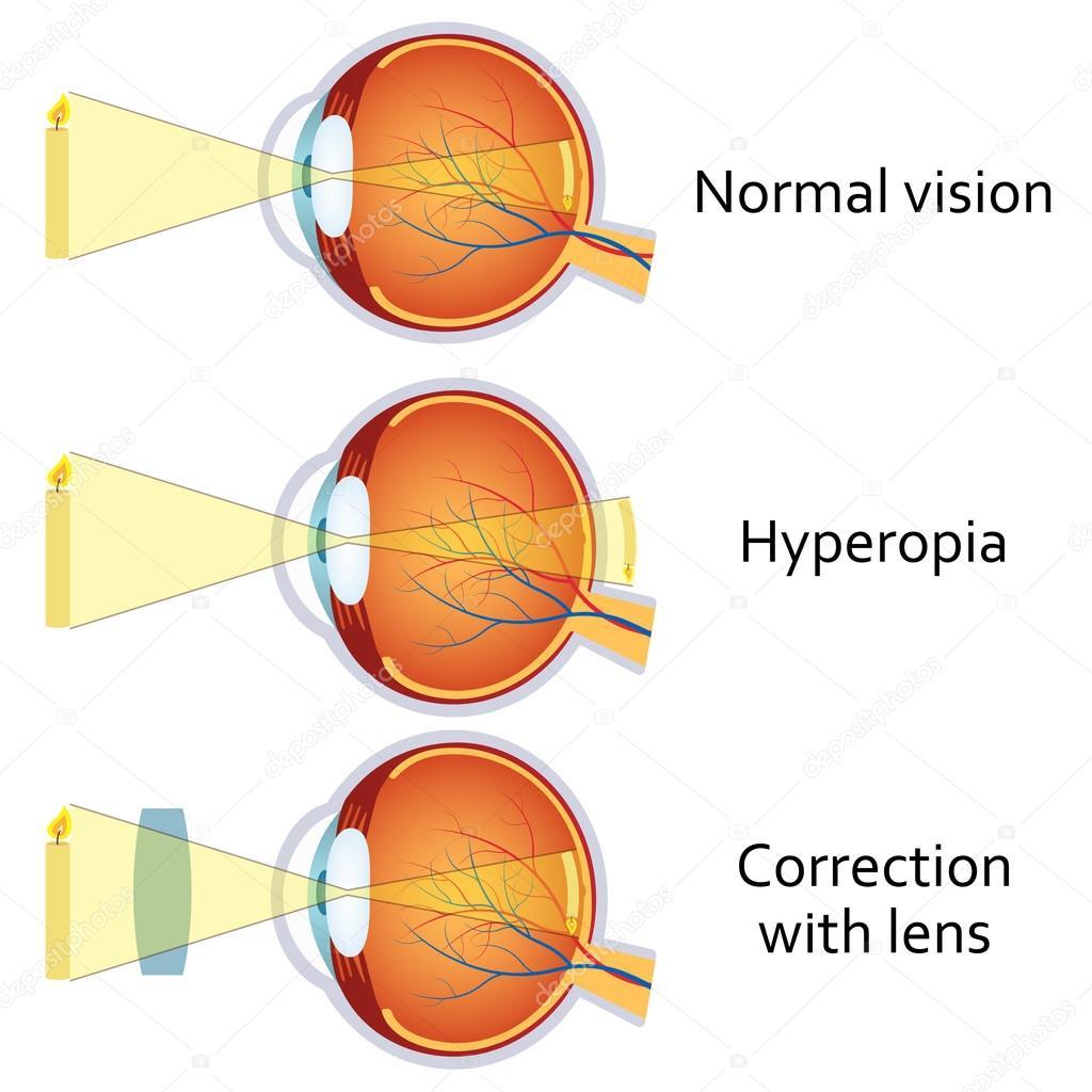 hyperopia plusz 3 gyógyítható-e a látás 1-ig?
