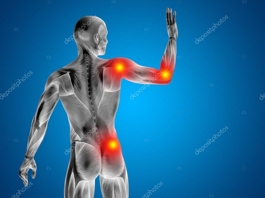 menschliche Gelenke Schmerzen — Stockfoto © design36 #123101250