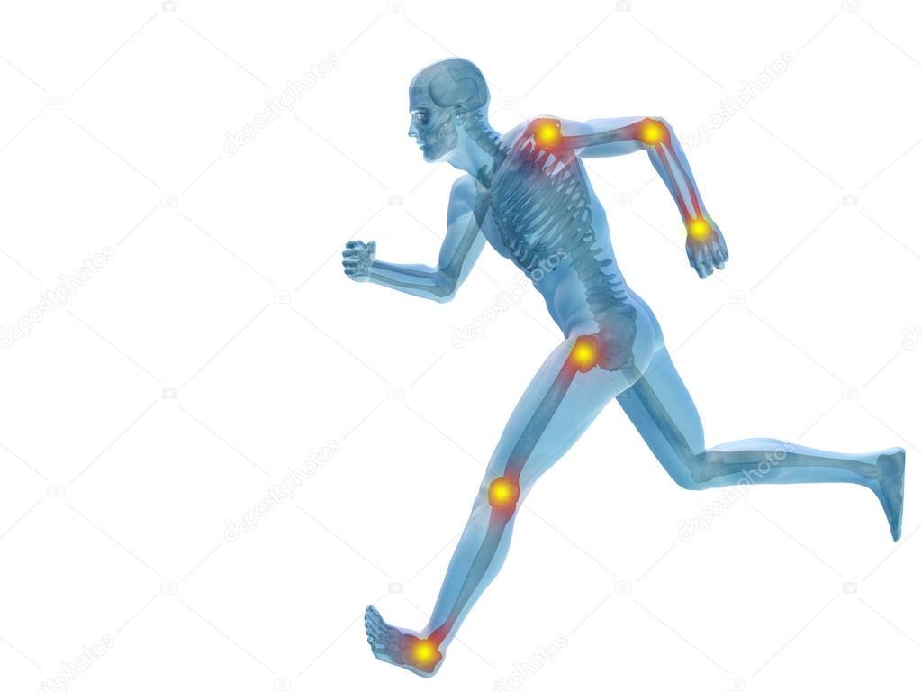 menschliche Gelenke Schmerzen — Stockfoto © design36 #123104292