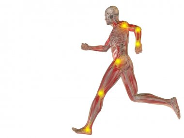 Conceptual human with joint  pain