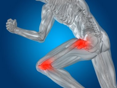 joint or articular pain