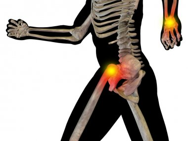 joint or articular pain, ache