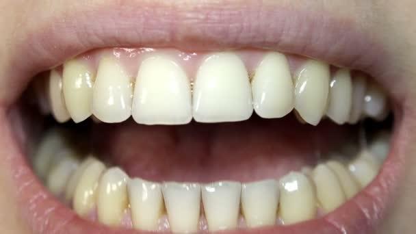 Žena zobrazeno zuby