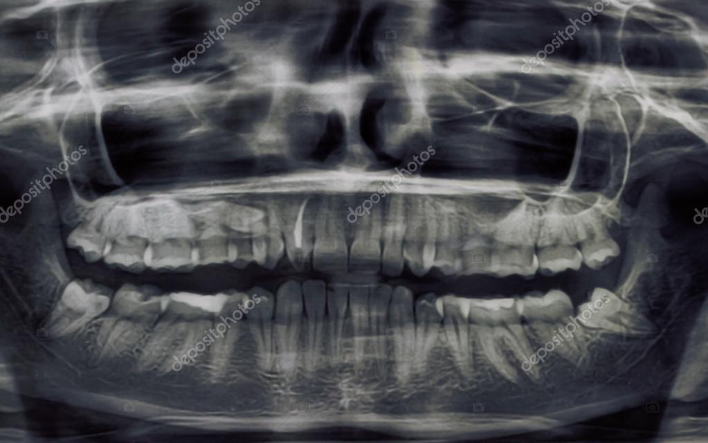 Radiografía panorámica dental de los dientes — Foto de stock ...