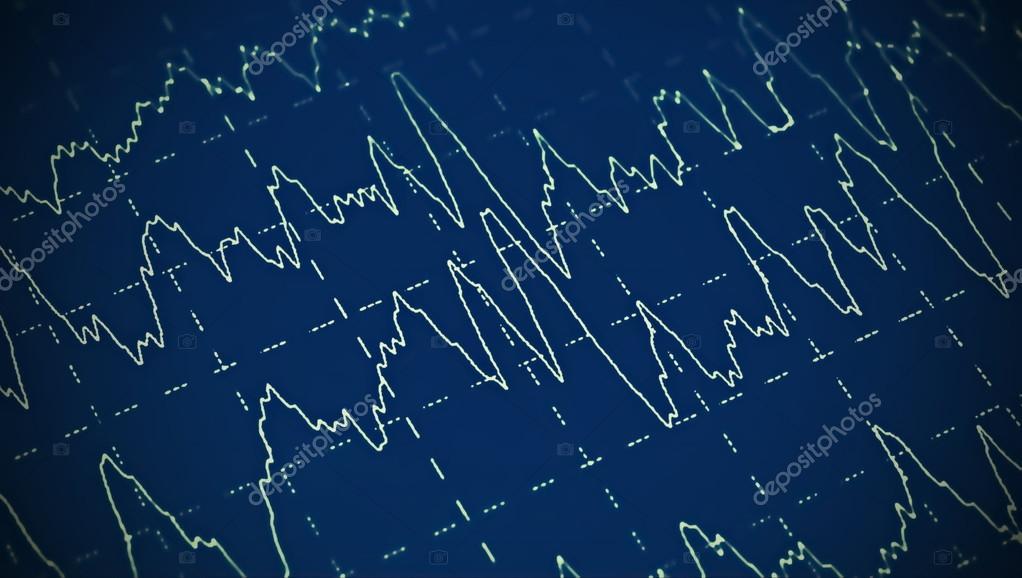 brain wave on electroencephalogram eeg for epilepsy stock photo