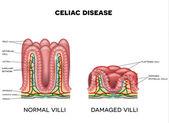 Celiakii ovlivněna klky tenkého střeva