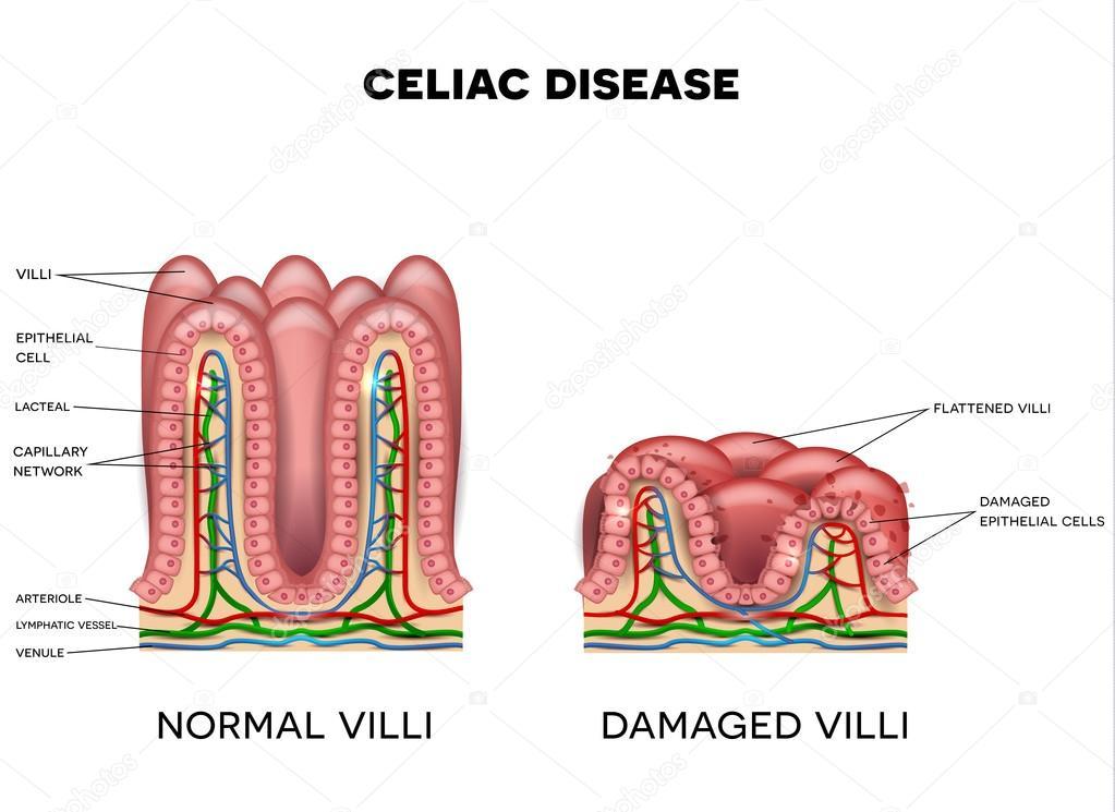 Celiac Disease Affected Small Intestine Villi Stock Vector
