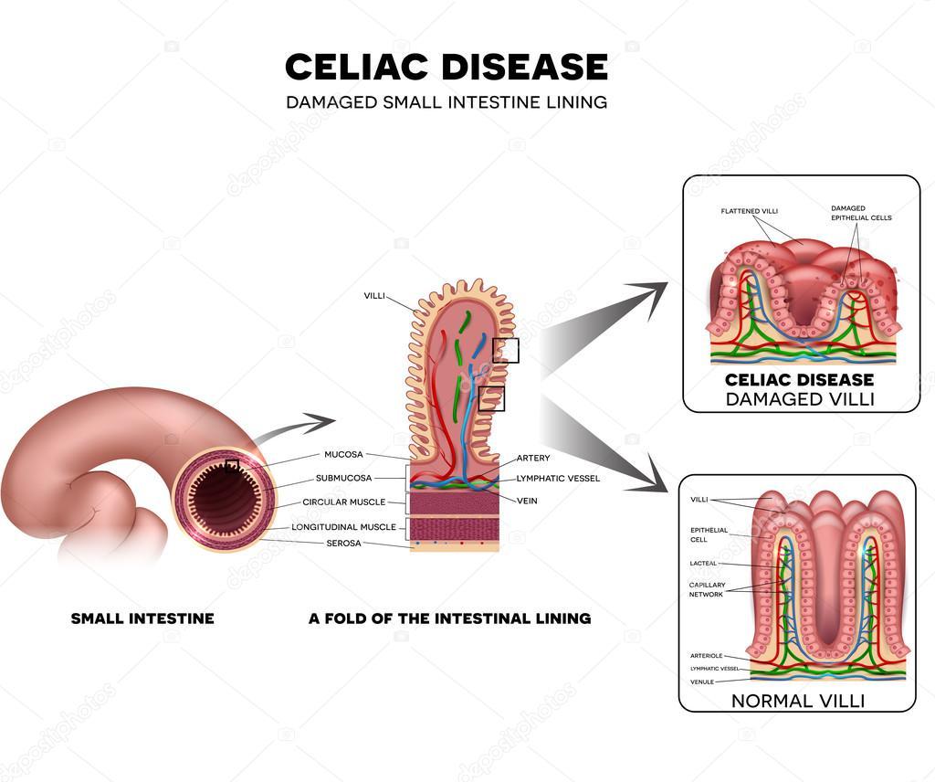 La enfermedad celiaca intestino forro daño — Archivo Imágenes ...