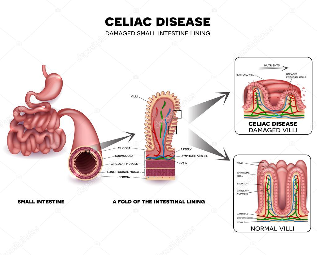 Esquema detallado de la enfermedad celíaca — Vector de stock ...