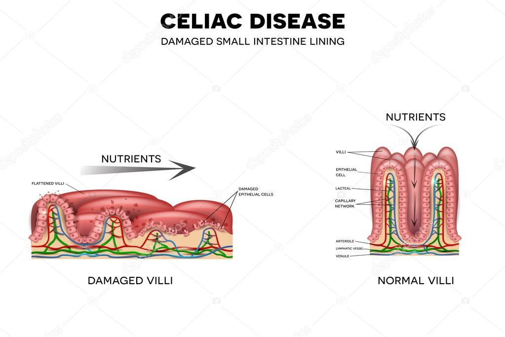La enfermedad celíaca afecta las vellosidades intestinales — Archivo ...