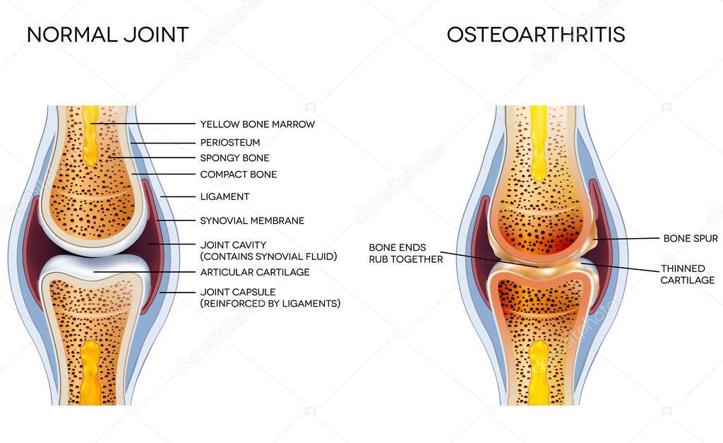 Osteoartritis y anatomía articulación normal — Vector de stock ...