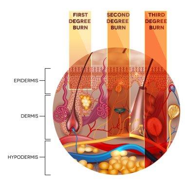 Skin burn classification