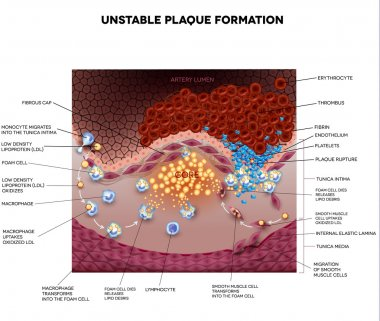 Thrombus, blood clot, unstable plaque  formation in the artery