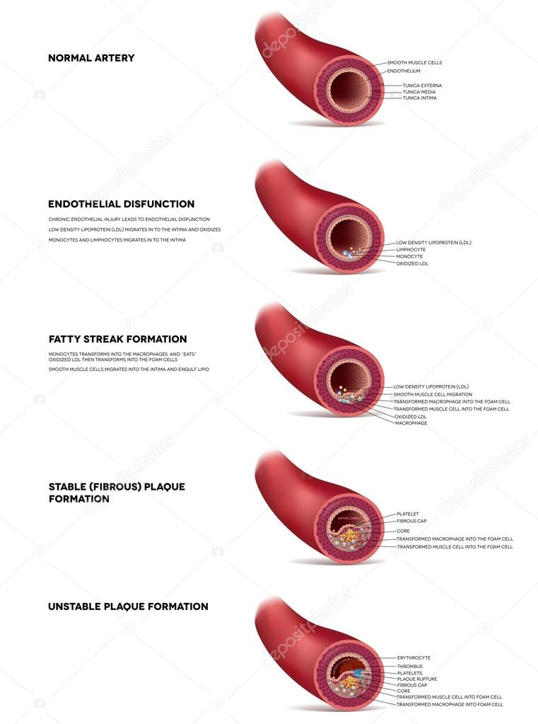 Atherosclerosis detailed illustration, progression till Thrombus