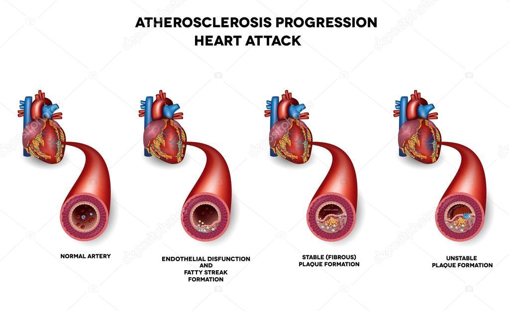 Ataque al corazón, aterosclerosis — Archivo Imágenes Vectoriales ...