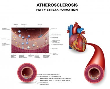 Atherosclerosis. Early stage