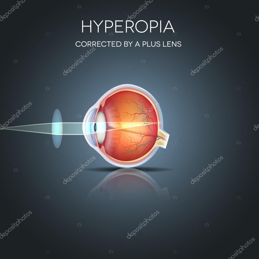hipermetropie plus 4