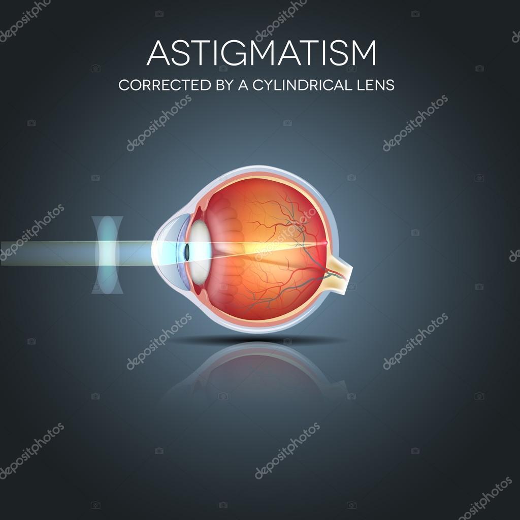 Astigmatismo, corregido por una lente cilíndrica — Archivo Imágenes ...